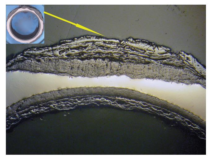 부식 된 스테인레스 스틸 파이프 단면적으로 오염 및 산화로 인한 모재 금속의 두께가 감소 함 8X.